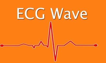 ECG Wave explained