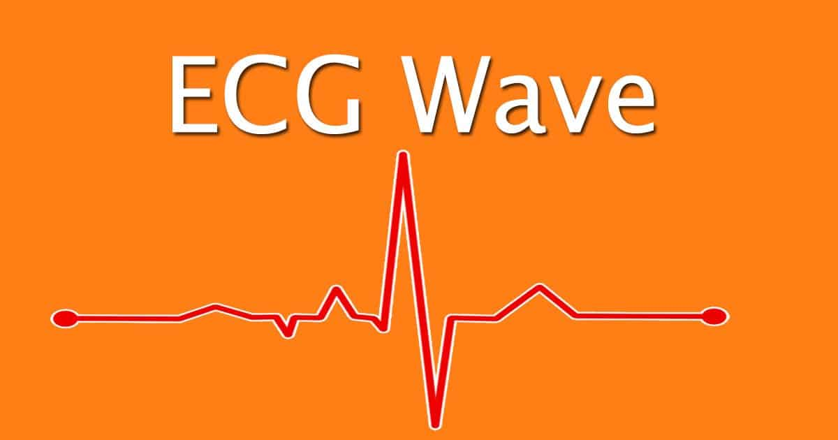 ECG wave explained, I love Veterinary