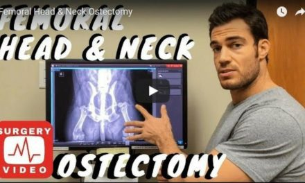 Femoral Head & Neck Ostectomy – Video by Dr. Evan Antin
