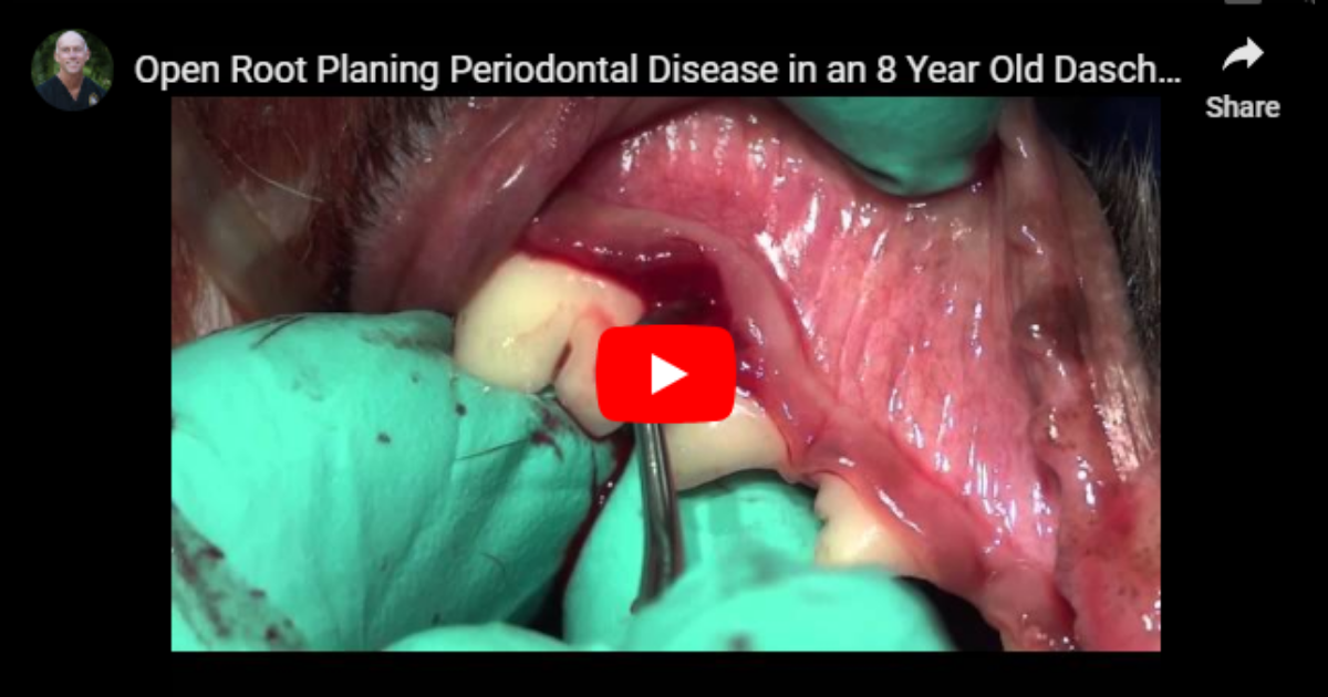 Open Root Planing Periodontal Disease – Video by Dr. Brett Beckman
