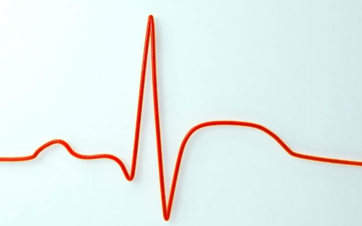 Congestive Heart Failure and Furosemide therapy by I Love Veterinary