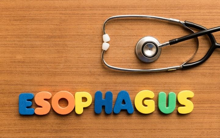 Esophagus - the tube that connects the throat to the stomach by I Love Veterinary
