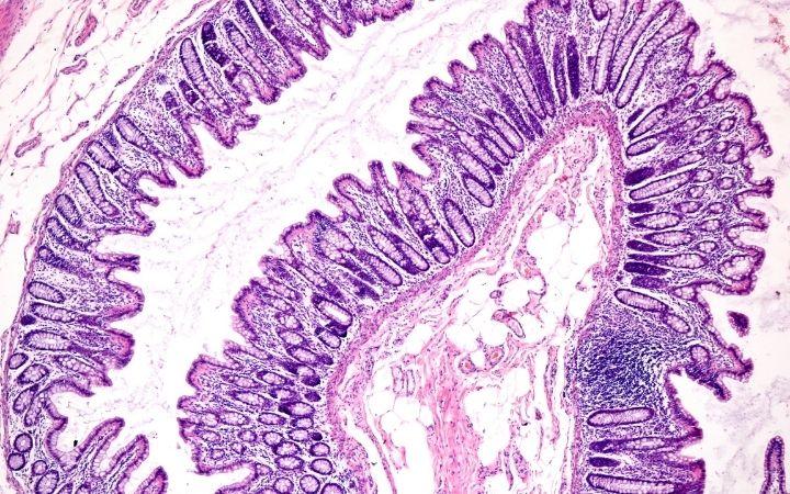 Large intestine mucosa - I Love Veterinary