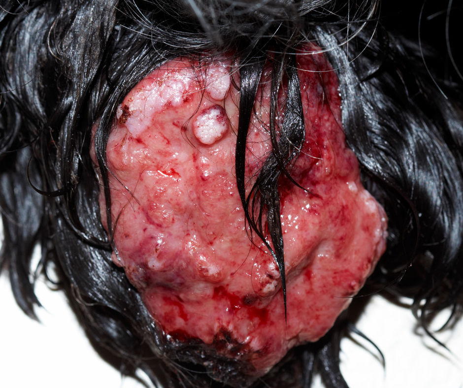 mammary tumor on black female dog